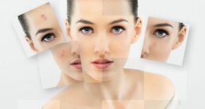 acne treatment in Noida