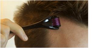 derma roller treatment in noida