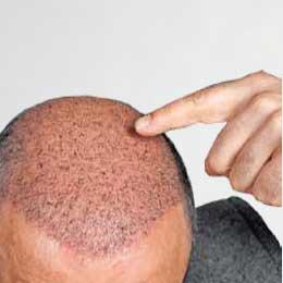 hair transplant clinic in Noida