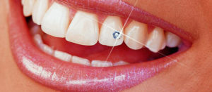 Tooth jewelry clinic in Noida