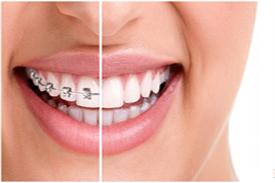 Orthodontic treatment