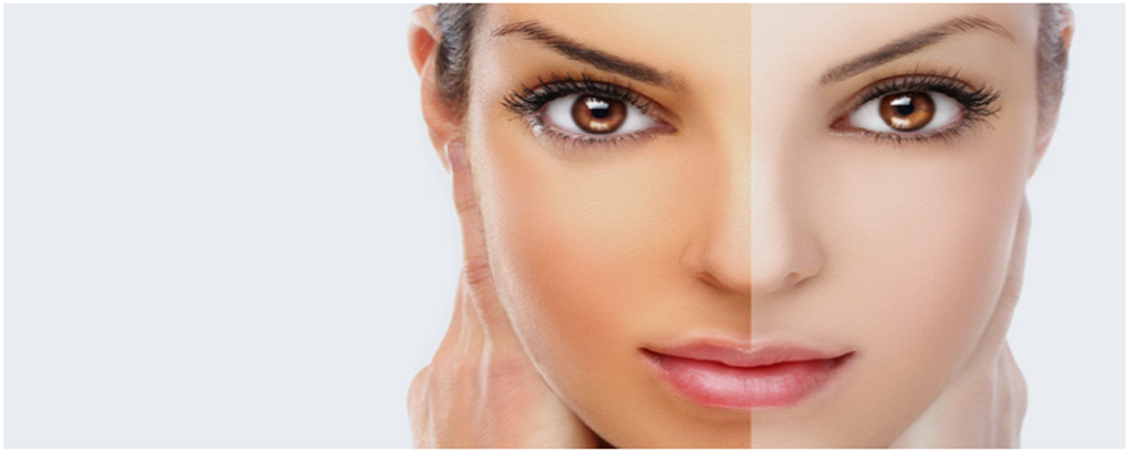 skin whitening treatment in Noida