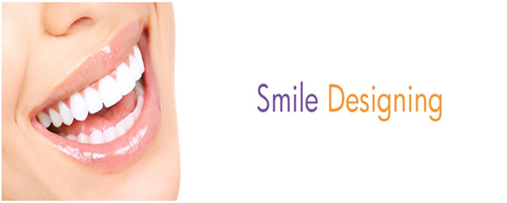 Smile designing in Noida