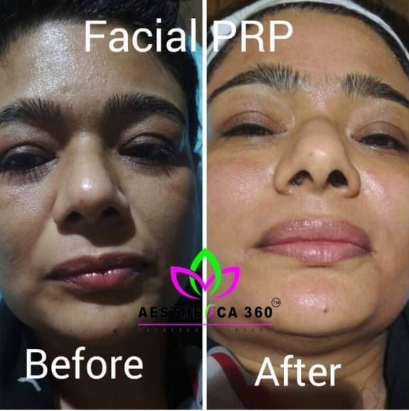 Facial PRP Noida
