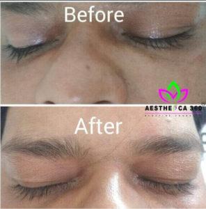 Under Eye Treatment Noida