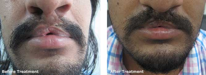 developmental anomaly hair transplant