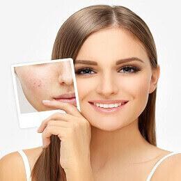 skin clinic in Noida
